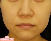 湘南美容クリニック赤羽院の顔のしわ・たるみの整形(リフトアップ手術)の症例写真[ビフォー]