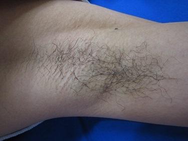 両わき脱毛の1回の変化の症例写真[ビフォー]
