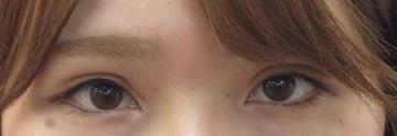 浜松中央クリニックの目・二重の整形の症例写真[アフター]