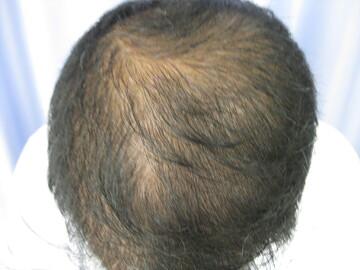 の薄毛治療の症例写真[ビフォー]
