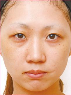 ■隆鼻術+耳介軟骨移植の症例写真[ビフォー]