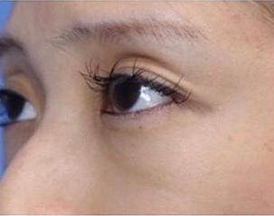 銀座長瀬クリニック 大阪院の目元整形・クマ治療の症例写真[ビフォー]