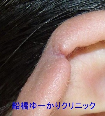 医療法人社団茉悠乃会 船橋ゆーかりクリニックの耳の整形の症例写真[ビフォー]