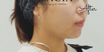 GRACIA clinic(グラシアクリニック) (旧L.O.V.E beauty clinic)の脂肪吸引の症例写真[アフター]
