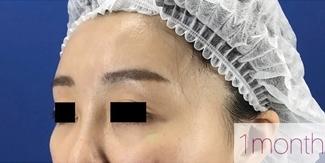 La Clinique Ginza(ラ クリニック銀座)の顔の整形(輪郭・顎の整形)の症例写真[アフター]