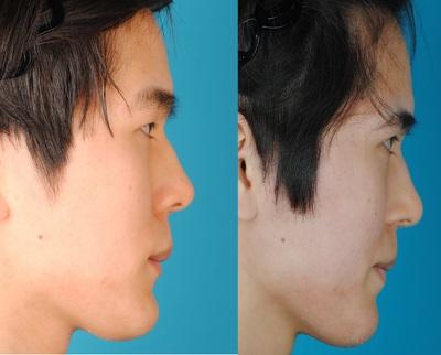3D鼻翼縮小術の症例写真[アフター]