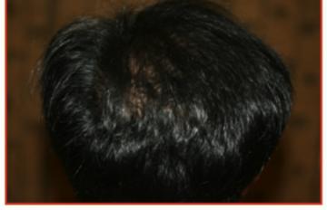 共立美容外科・歯科の薄毛治療・AGA・発毛の症例写真[アフター]