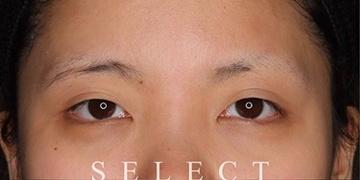 SELECT CLINIC (セレクトクリニック)の目・二重の整形の症例写真[ビフォー]