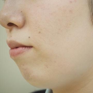 タウン形成外科クリニックの顔の整形(輪郭・顎の整形)の症例写真[ビフォー]
