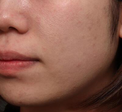 肌管理毛穴スリークスキン4回モニターの症例写真[ビフォー]