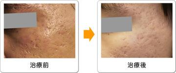 ワイズスキンケアクリニックのニキビ治療・ニキビ跡の治療の症例写真