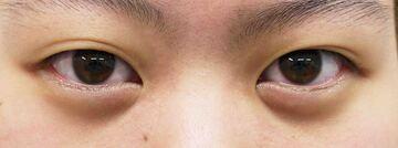 しらさぎ形成クリニックの目・二重整形の症例写真