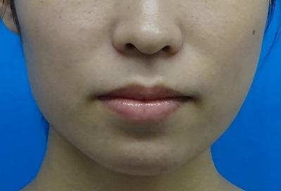 新脂肪溶解注射(BNLS)パーフェクト 両頬10cc×3回の症例写真[アフター]