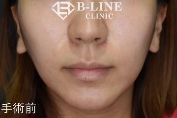 B-LINE CLINIC (ビーラインクリニック)の鼻の整形の症例写真[ビフォー]