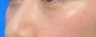 目の下のふくらみ取り(脂肪取り)パーフェクトの症例写真[アフター]