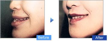 コムロクリニック(旧コムロ美容外科)の顔の整形(輪郭・顎の整形)の症例写真