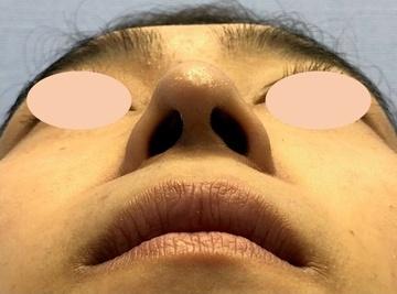 湘南美容クリニック 川崎院の鼻の整形の症例写真[アフター]