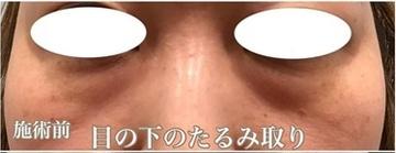 西宮SHUHEI美容クリニックの目元整形・クマ治療の症例写真[ビフォー]