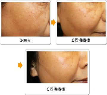 ワイズスキンケアクリニックのシミ取り・肝斑・毛穴治療の症例写真