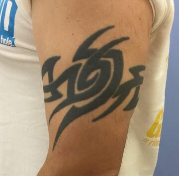 福岡博多駅前通中央クリニックのタトゥー除去の症例写真[ビフォー]