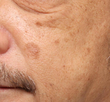 のシミ取り・肝斑・毛穴治療の症例写真[ビフォー]