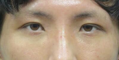眼瞼下垂(挙筋短縮法)+瞼の脂肪取りの症例写真[アフター]