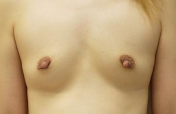しらさぎ形成クリニックの豊胸手術(胸の整形)の症例写真