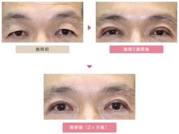 大塚美容形成外科 東京大塚院の目・二重整形の症例写真