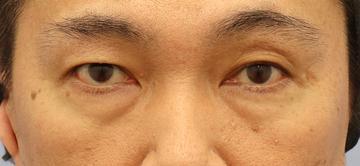 湘南美容クリニック 町田院の目元の整形、くま治療の症例写真[ビフォー]