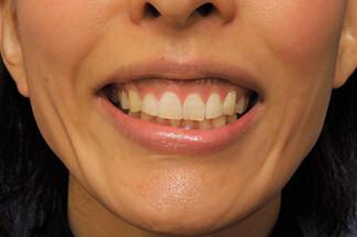 よこはまエーブクリニックの口もと、唇の整形の症例写真[ビフォー]