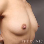 THE CLINIC(ザ・クリニック)の豊胸手術(胸の整形)の症例写真[アフター]