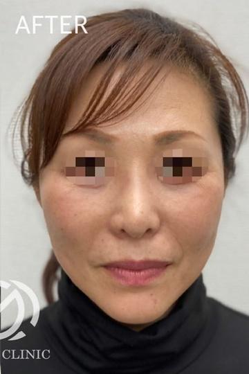 GLANZ CLINIC (グランツクリニック)の顔のしわ・たるみの整形(リフトアップ手術)の症例写真[アフター]