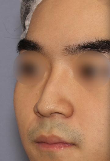 湘南美容クリニック 大阪梅田院の鼻の整形の症例写真[ビフォー]
