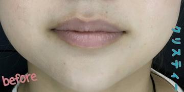 CHRISTINA clinic GINZA (クリスティーナクリニック銀座)の口もと、唇の整形の症例写真[ビフォー]