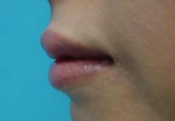東京美容外科の口もと、唇の整形の症例写真[アフター]