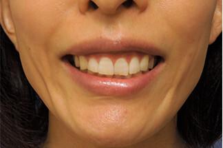 よこはまエーブクリニックの口もと、唇の整形の症例写真[アフター]