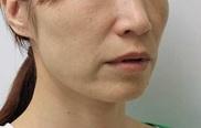 品川美容外科の顔のしわ・たるみの整形(リフトアップ手術)の症例写真[ビフォー]