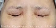 新宿ラクル美容外科クリニックの顔のしわ・たるみの整形(リフトアップ手術)の症例写真[アフター]