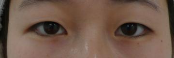 広島プルミエクリニックの目・二重の整形の症例写真[ビフォー]