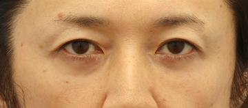 湘南美容クリニック 町田院の目元の整形、くま治療の症例写真[アフター]
