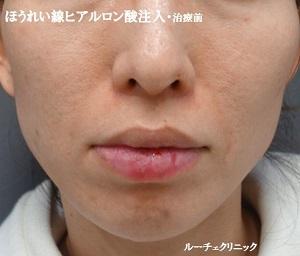 ルーチェ東京美容クリニック 池袋院の顔のしわ・たるみの整形(リフトアップ手術)の症例写真[ビフォー]