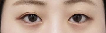 もとび美容外科クリニック 新宿院の目・二重整形の症例写真[ビフォー]