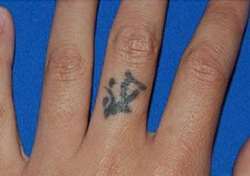 のタトゥー除去(刺青・入れ墨を消す治療)の症例写真[ビフォー]