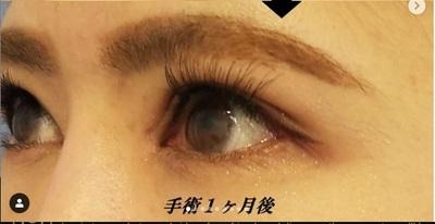 MD式眼瞼下垂+目頭・目尻切開/1ヶ月後の症例写真[アフター]