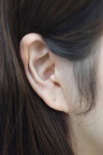 副耳切除の症例写真[ビフォー]