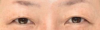 の目・二重整形の症例写真[ビフォー]