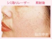 仙台中央クリニックのシミ治療(シミ取り)・肝斑・毛穴治療の症例写真[アフター]