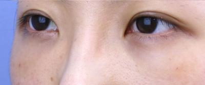 2020年度顧客満足度五つ星!須田陽一医師の多様な若返り術の症例写真[アフター]
