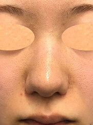 湘南美容クリニック新潟院の鼻の整形の症例写真[ビフォー]