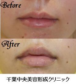 千葉中央美容形成クリニックの口もと、唇の整形の症例写真